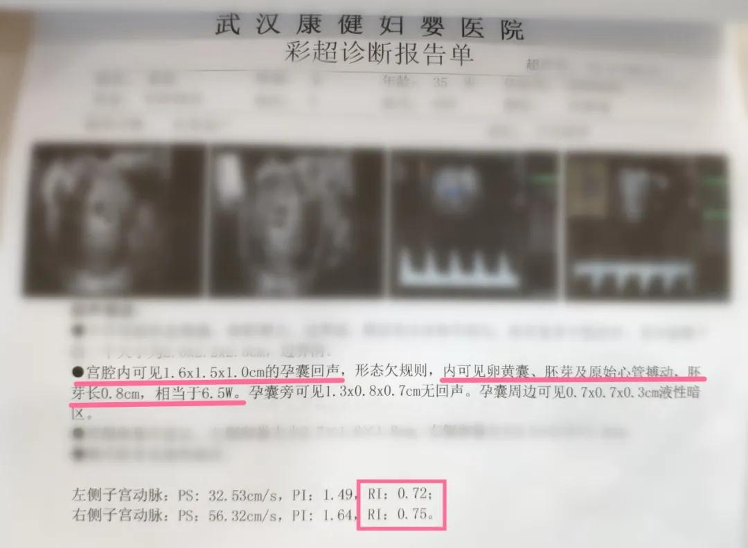 外院三次移植失败 ,武汉康健医院多位专家联合诊治助她成功好孕